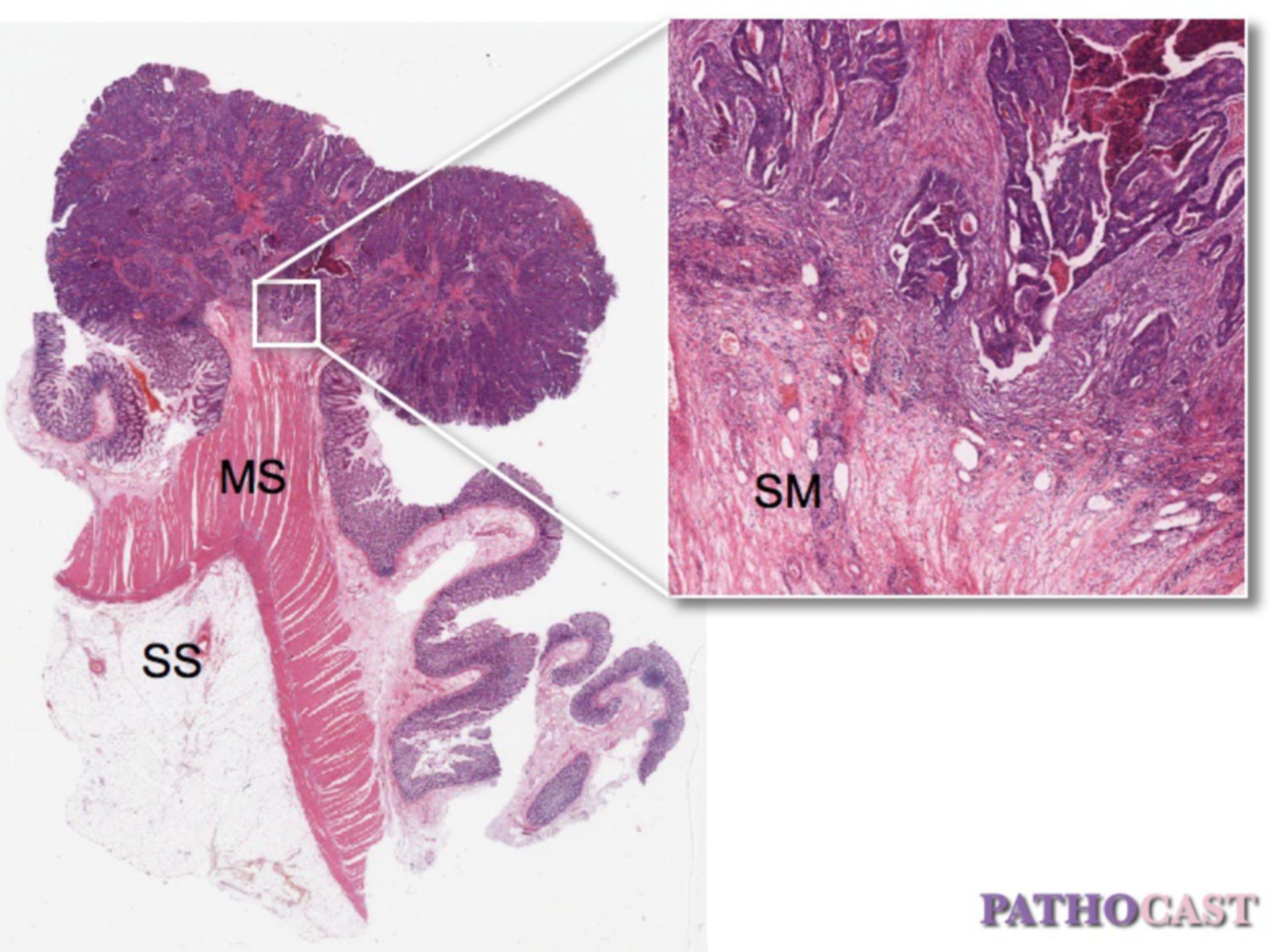 Pedunculated colon cancer
