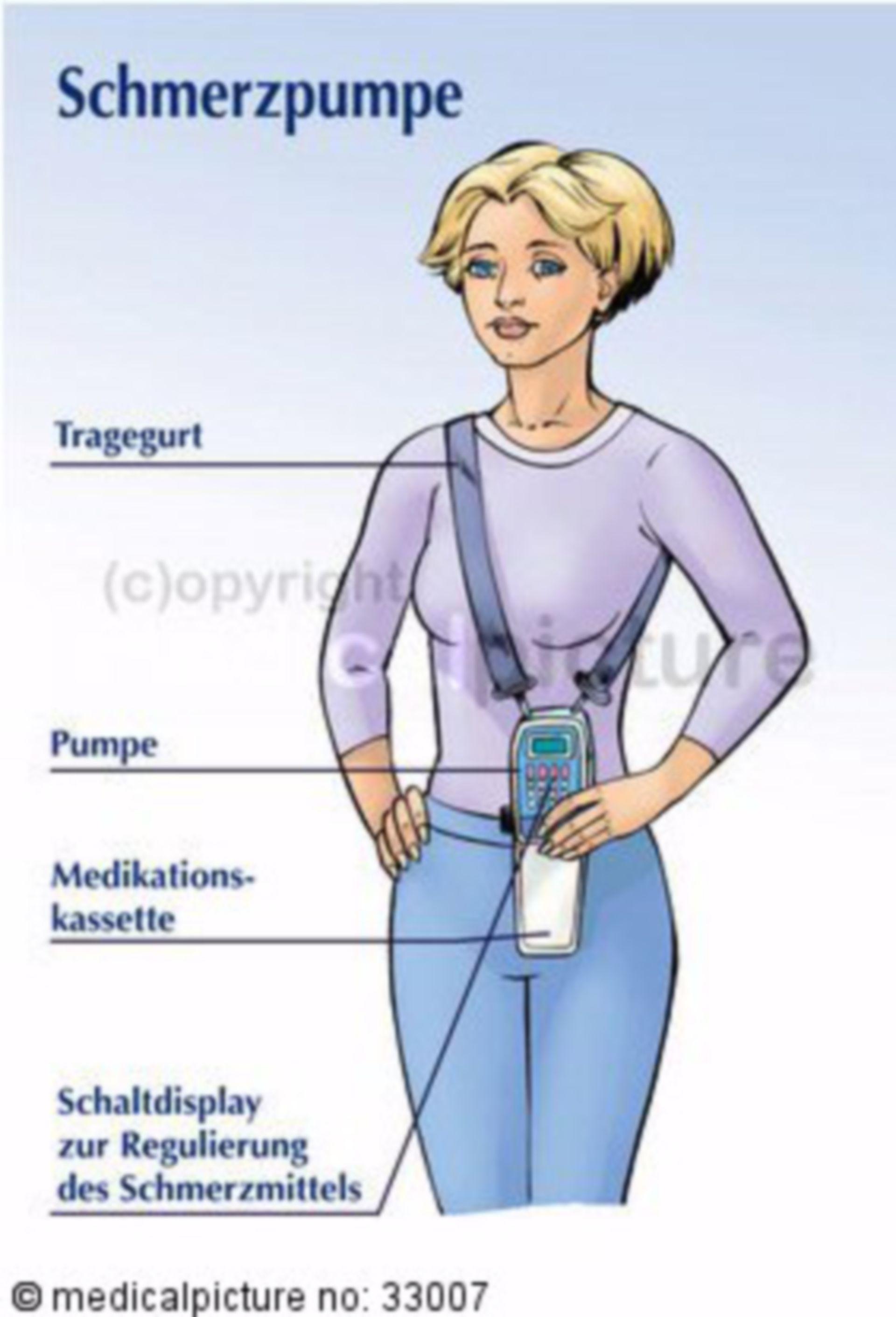Tragbare Schmerzpumpe für chronische Schmerzpatientin