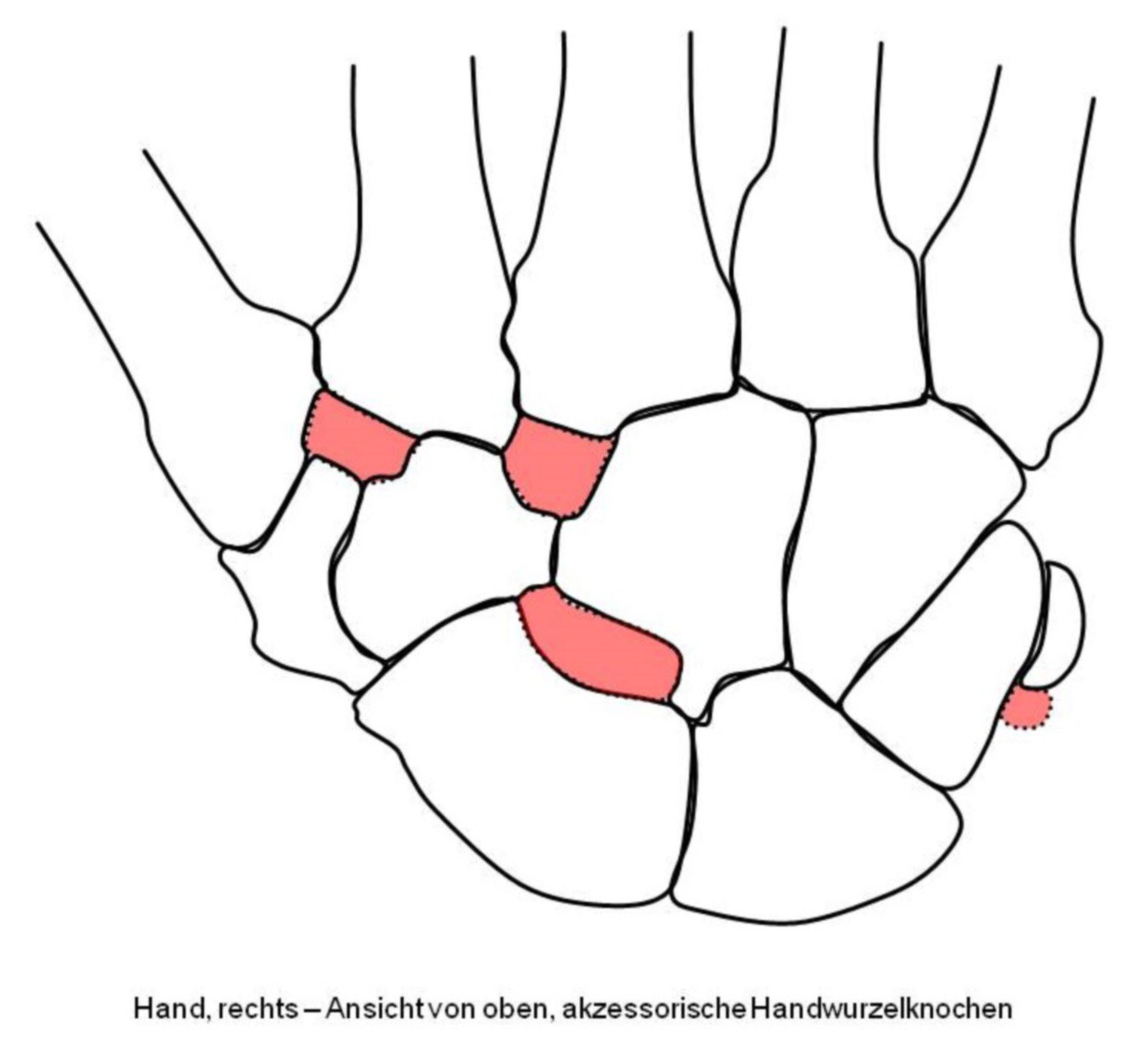 Akzessorische Handwurzelknochen