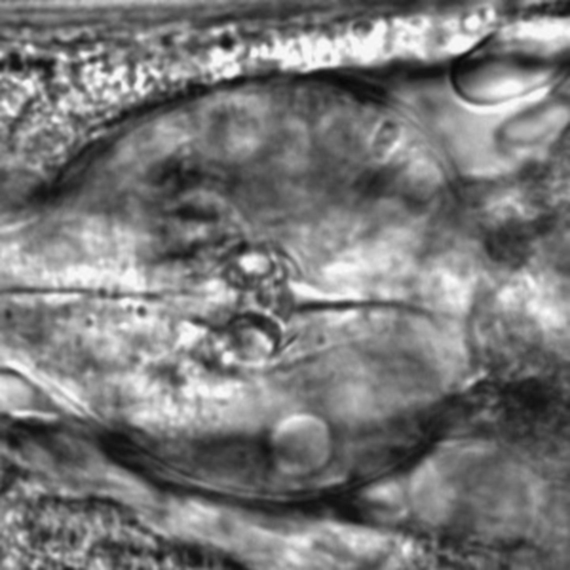 Caenorhabditis elegans - CIL:2233