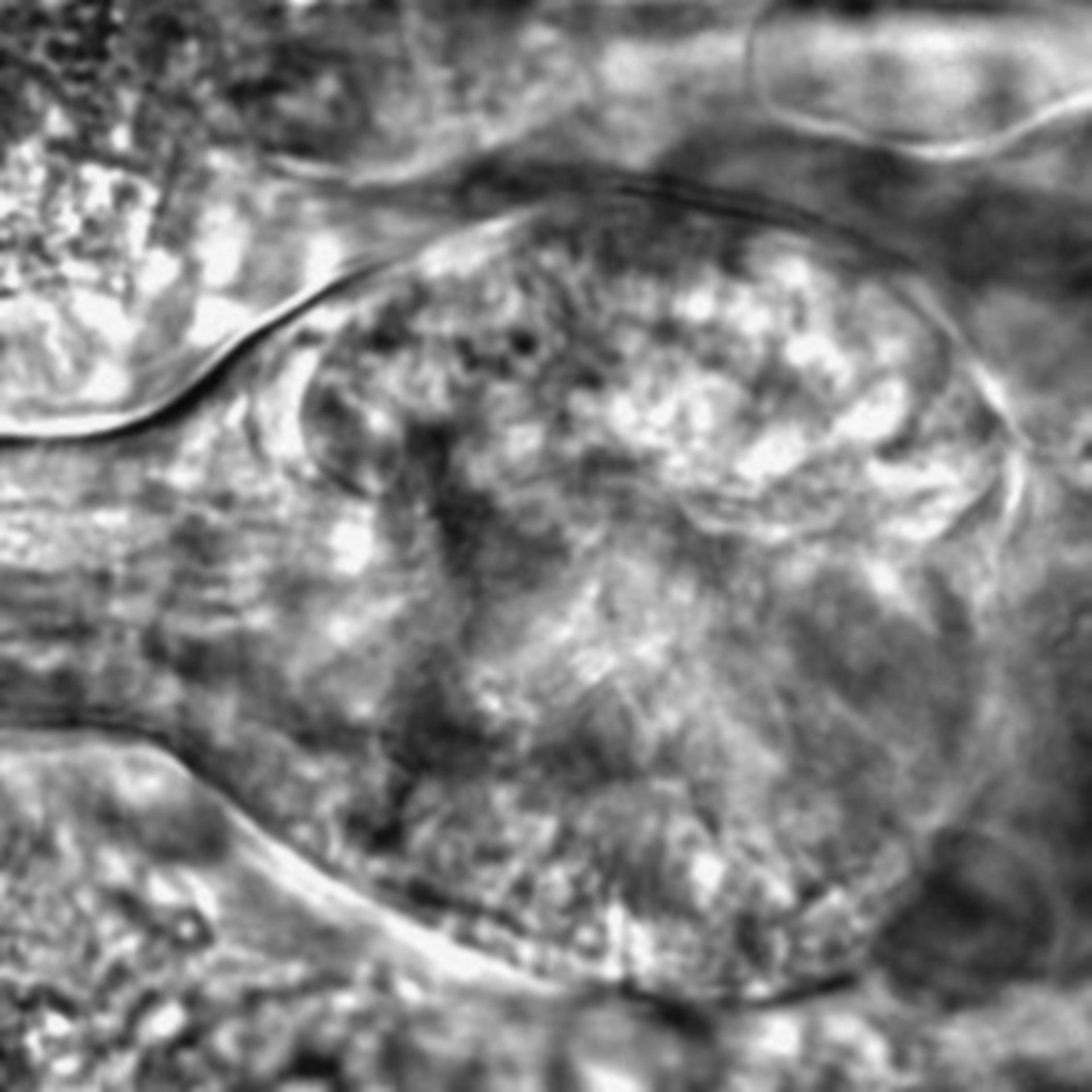 Caenorhabditis elegans - CIL:2717