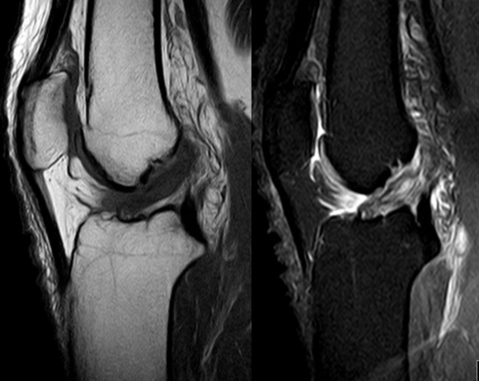 Ruptura del ligamentocruzado anterior en IRM