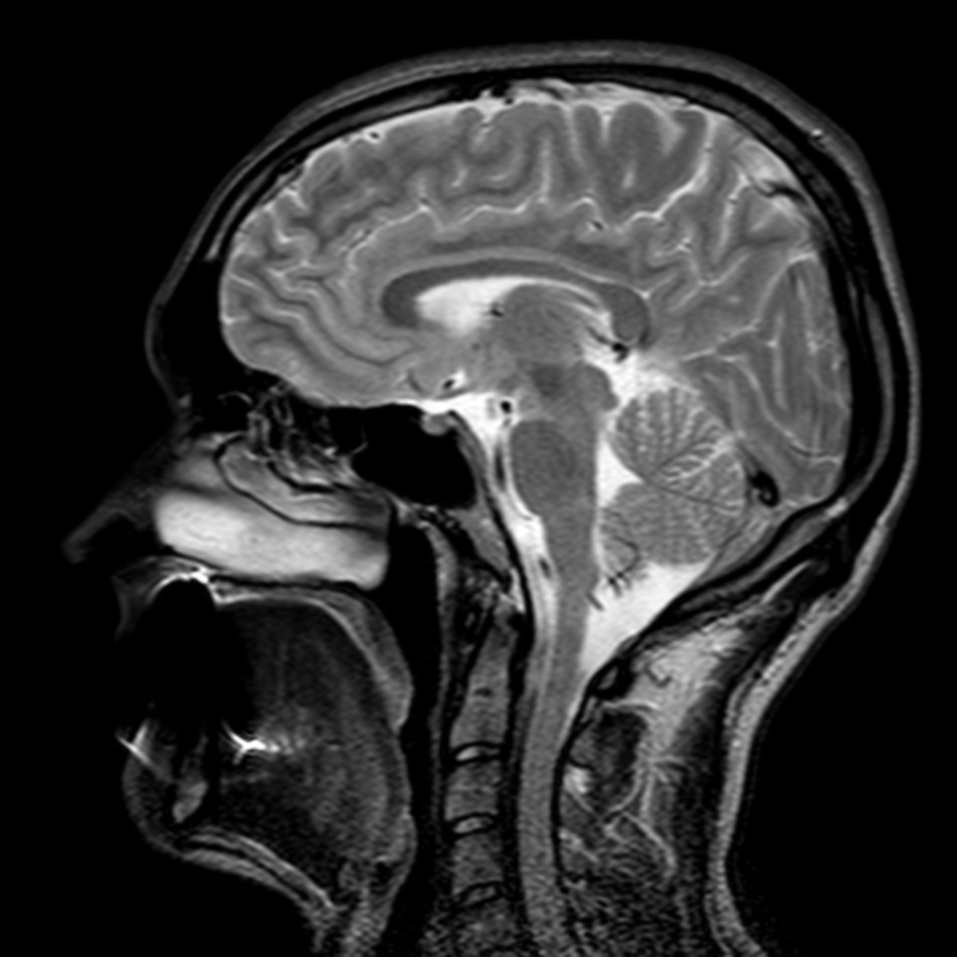 (18/34) MRT Schädel in Sagittalebene, T₂‐gewichtet