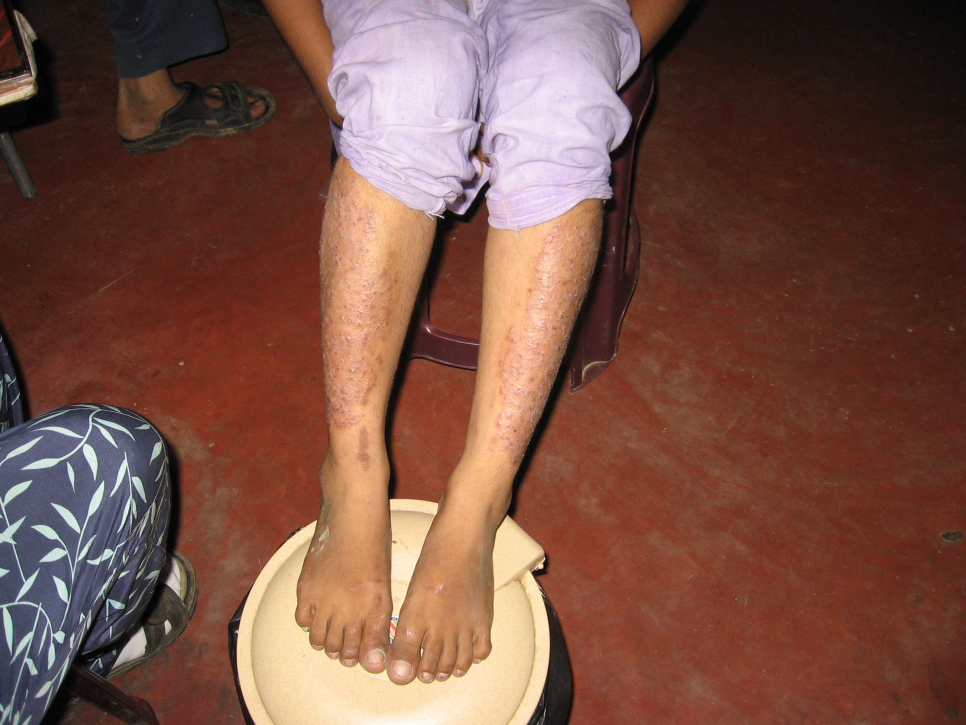 Tuberculous leprosy