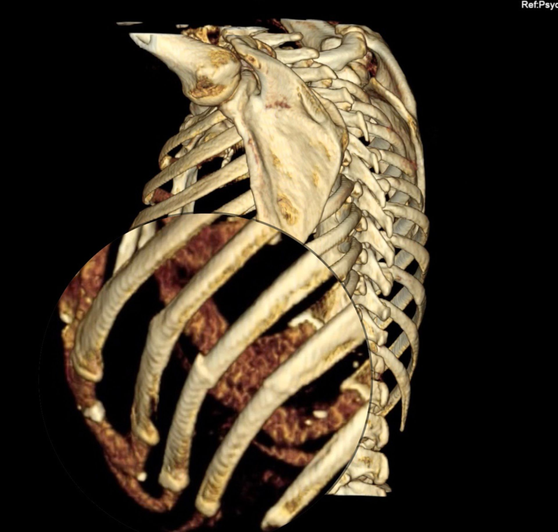 3D-Rekonstruktion einer CT des Thorax mit Ansicht von lateral mit Rippenfraktur