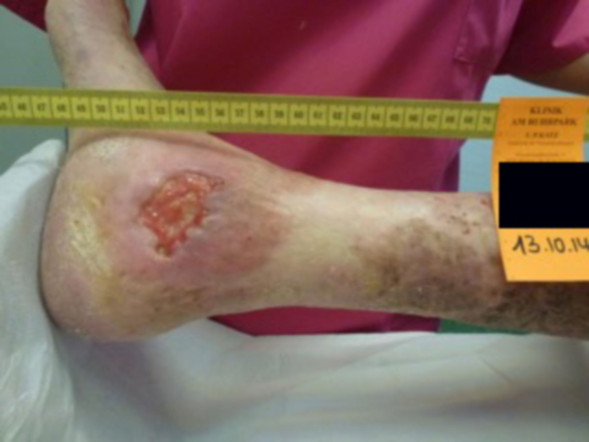 Úlcera de la pierna - abierta por 40 años (34)