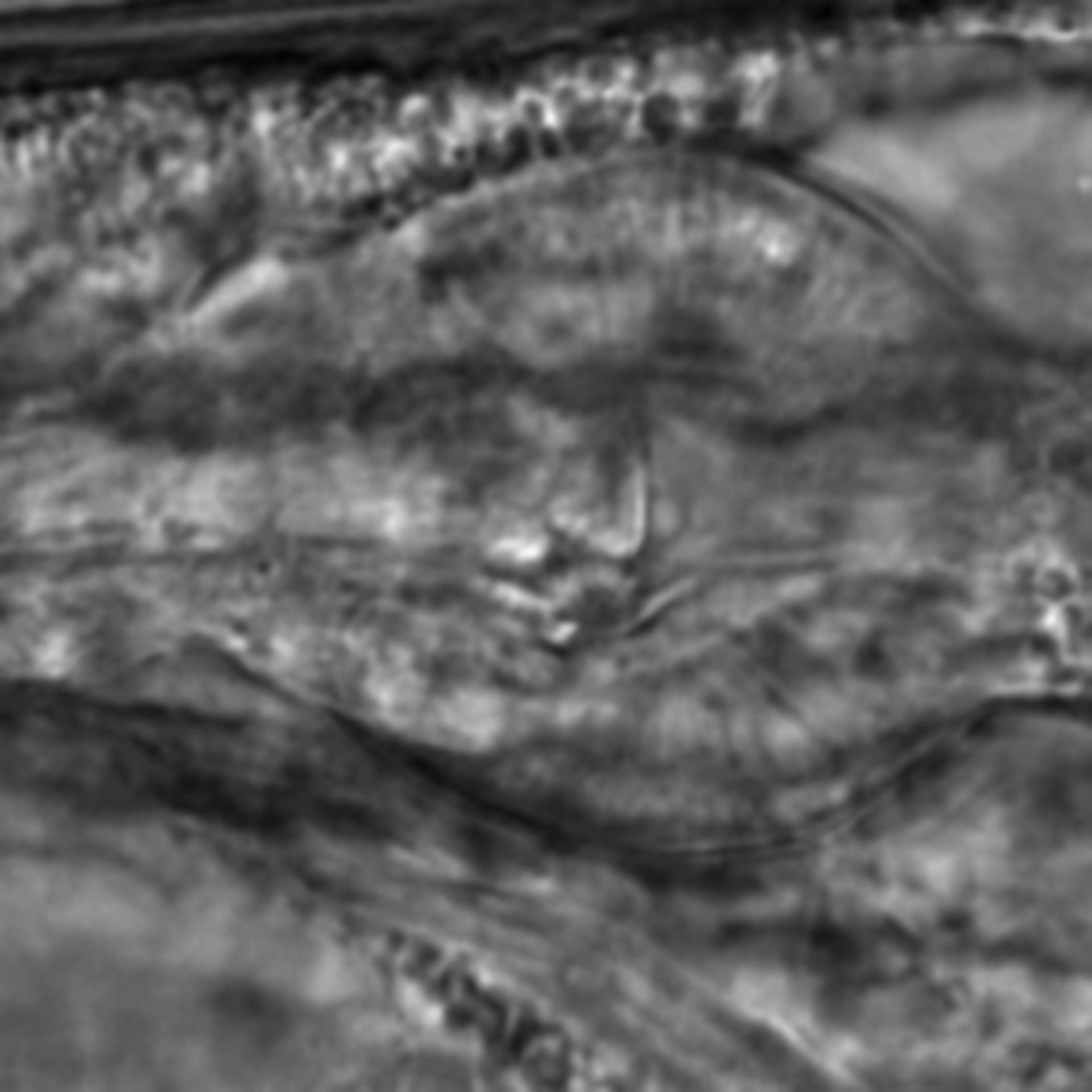Caenorhabditis elegans - CIL:2201