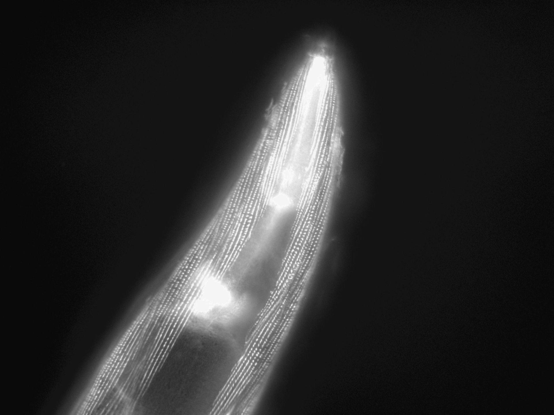 Caenorhabditis elegans (Actin filament) - CIL:1177