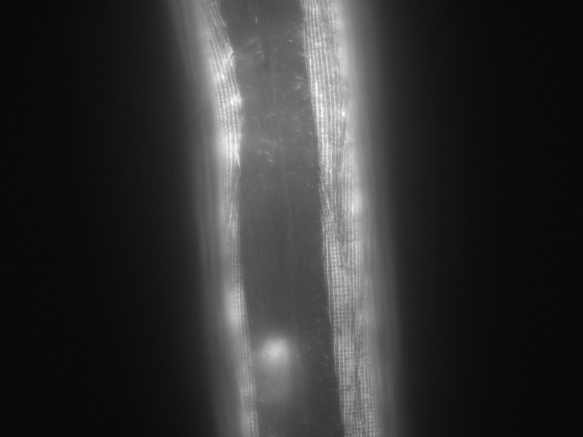 Caenorhabditis elegans (filamento di actina) - CIL:1006