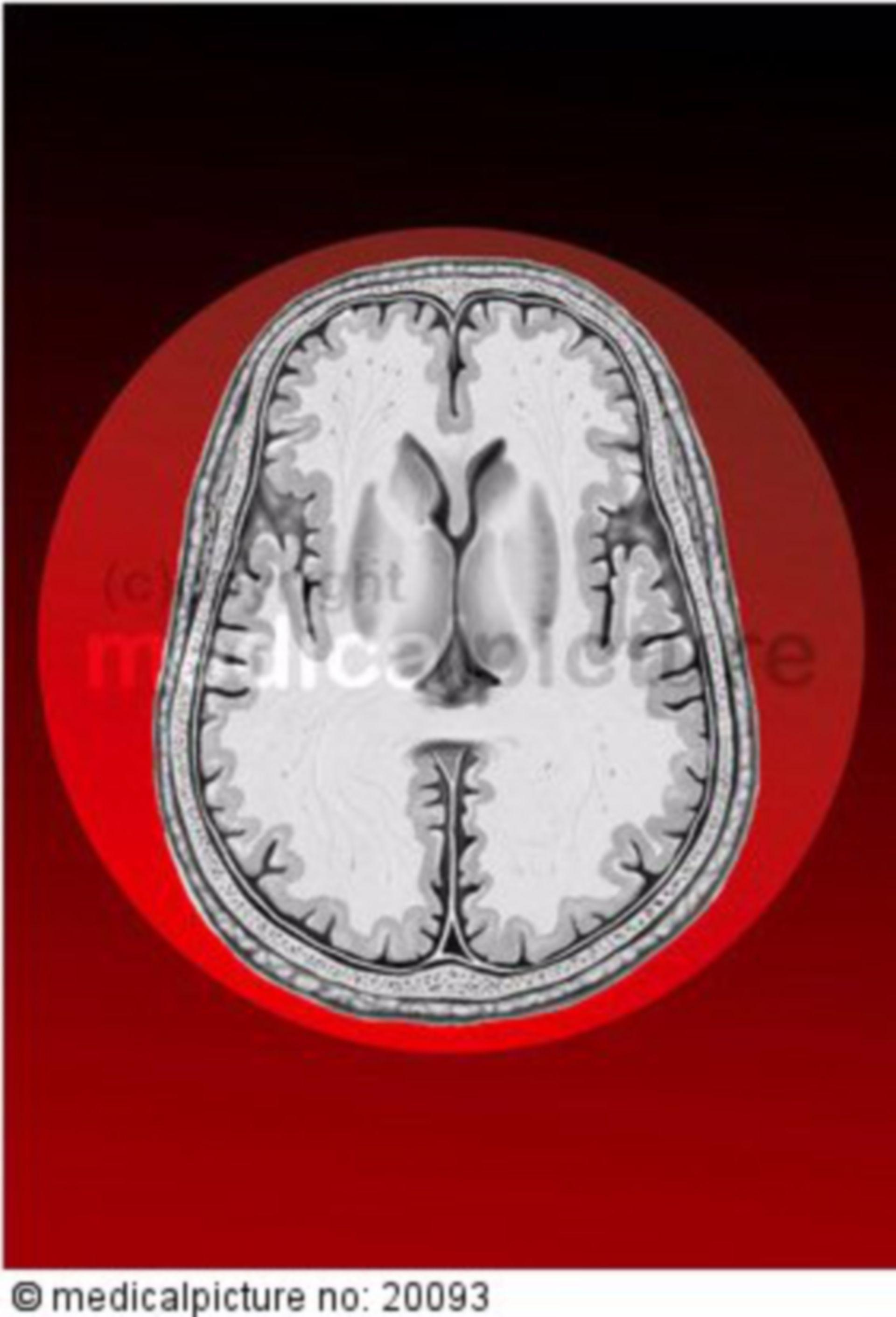 Horizontaler Gehirnschnitt