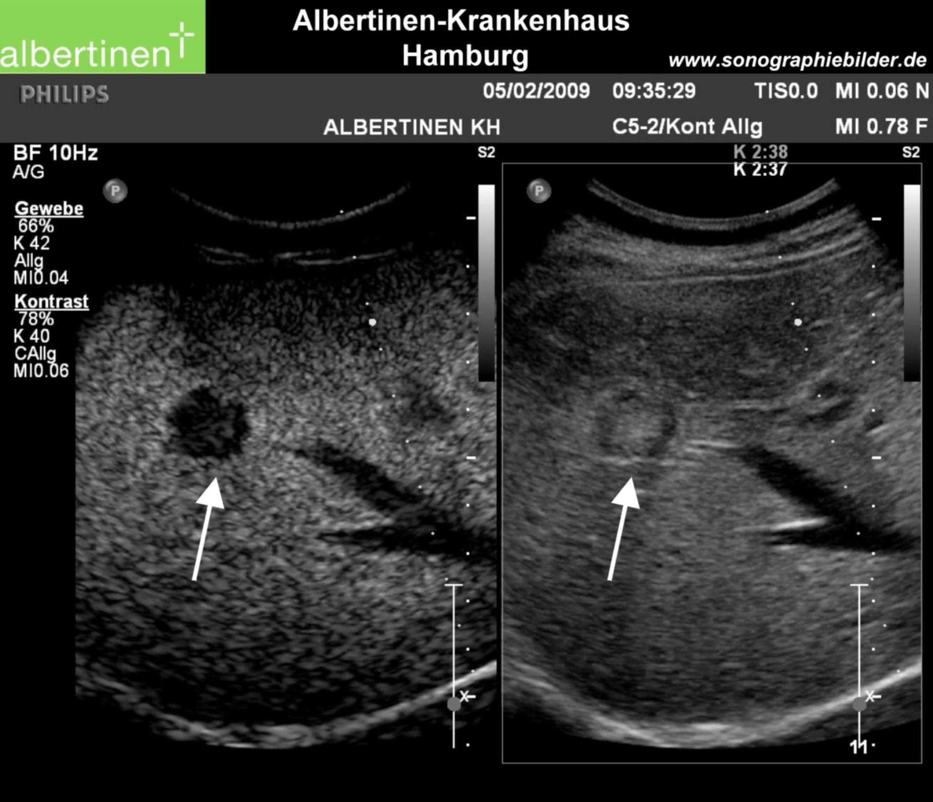 Liver metastasis, contrast sonography, arrows