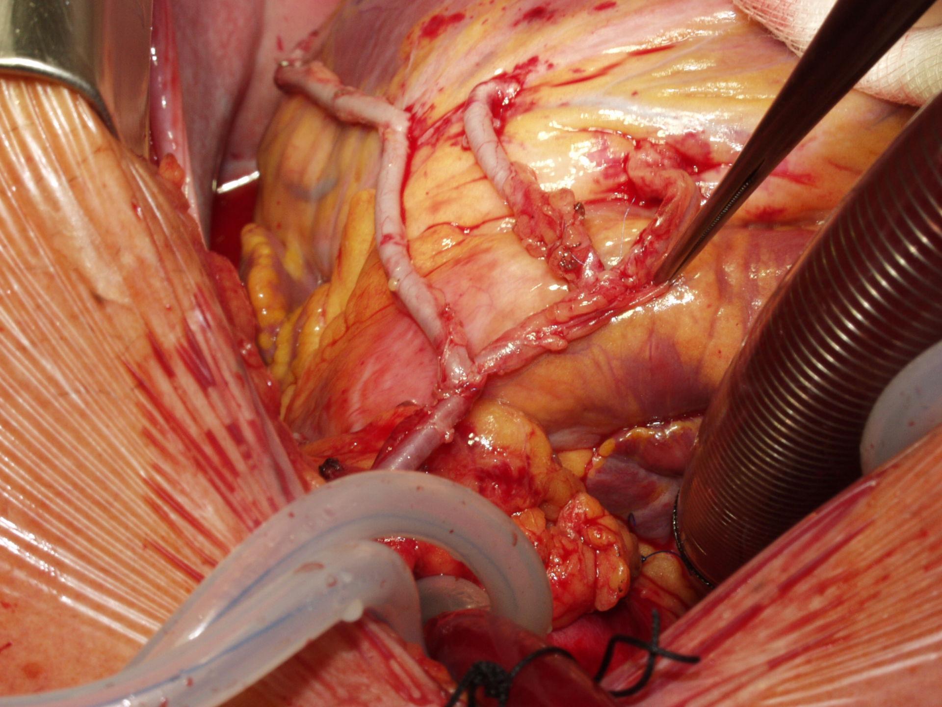 Derivación de la arteria coronaria - revascularización total (D)