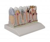 Erler-Zimmer Dentalmodell
