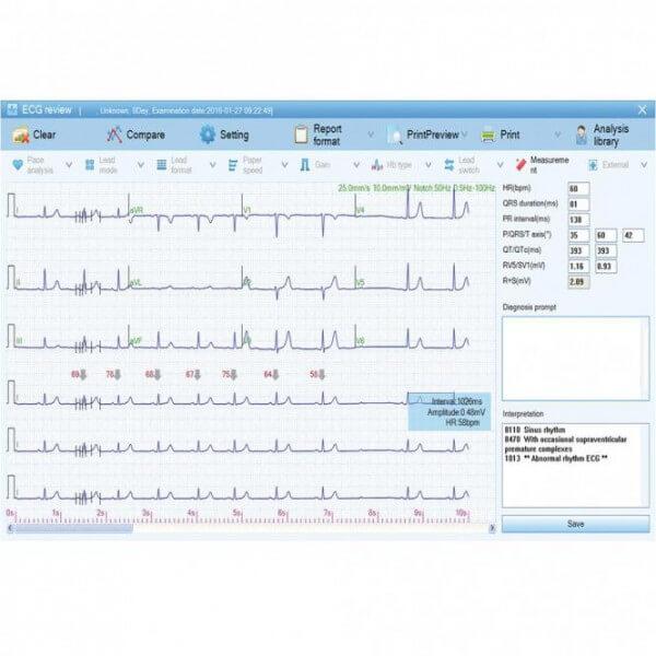ECG-1000 EKG-Datenmanagement-Software