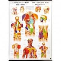 Rüdiger Anatomie Lehrtafel - Triggerpunkte Kopf und Rumpf