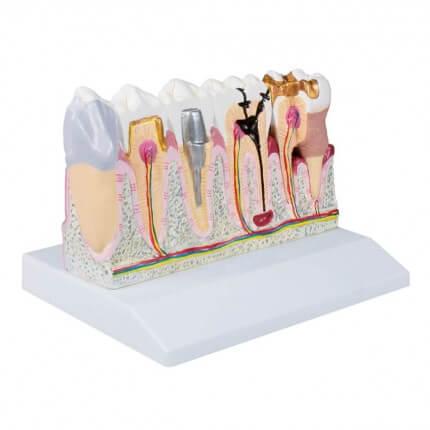 Dentalmodell