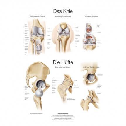 Lehrtafel – Das Knie / Die Hüfte