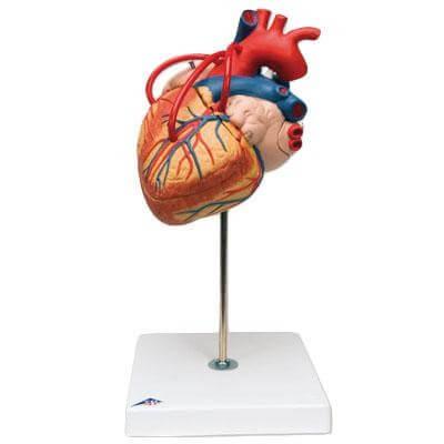 Modèle anatomique de coeur avec pontage