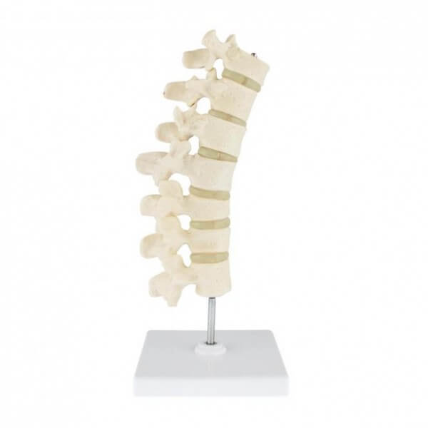 Modell Osteoporose Wirbelsäule