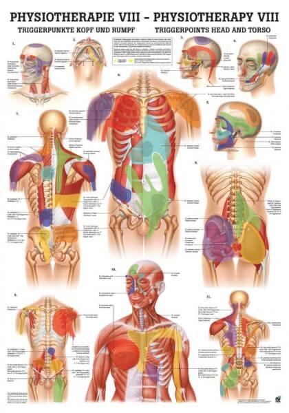 Lehrtafel – Triggerpunkte Kopf und Rumpf