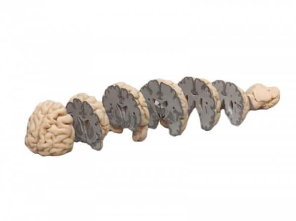 Menschliches Gehirn in Frontalschnitten