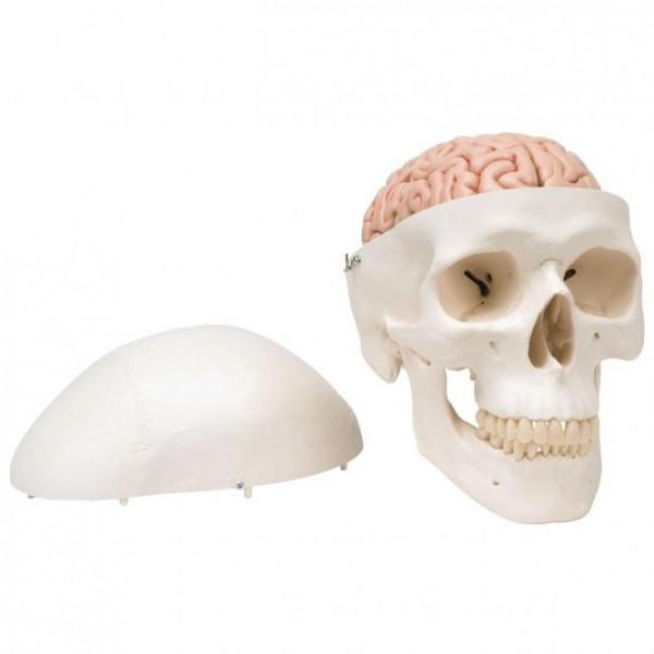 Klassik-Schädel mit Gehirn