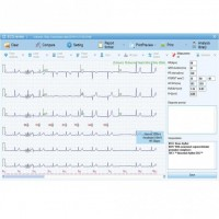 Biocare EKG-Software
